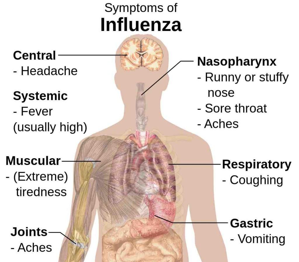 1200px-Symptoms_of_influenza
